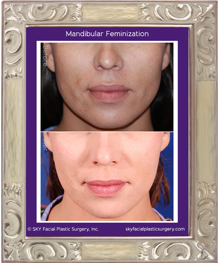 Mandibular angle osteotomies and chin contouring were performed to soften the angles of the jaw and give this patient a more feminine heart shaped appearance. All incisions were made through the mouth.