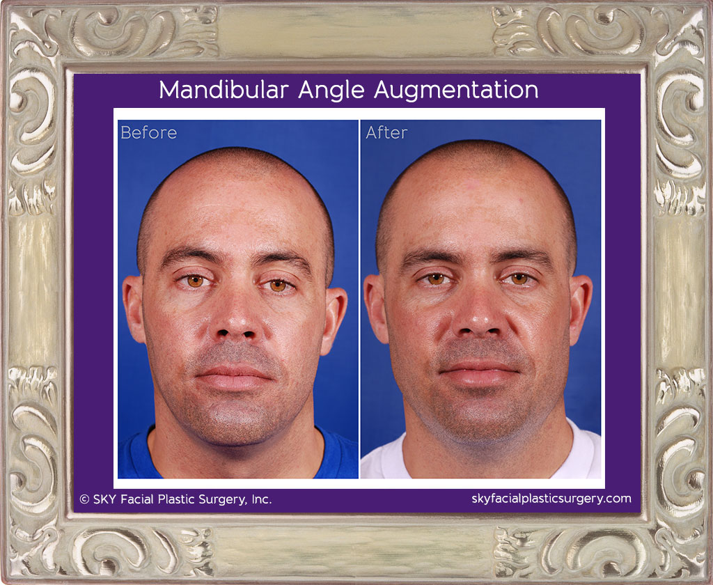 Implants were used to give this gentleman a more masculine and defined jaw line.