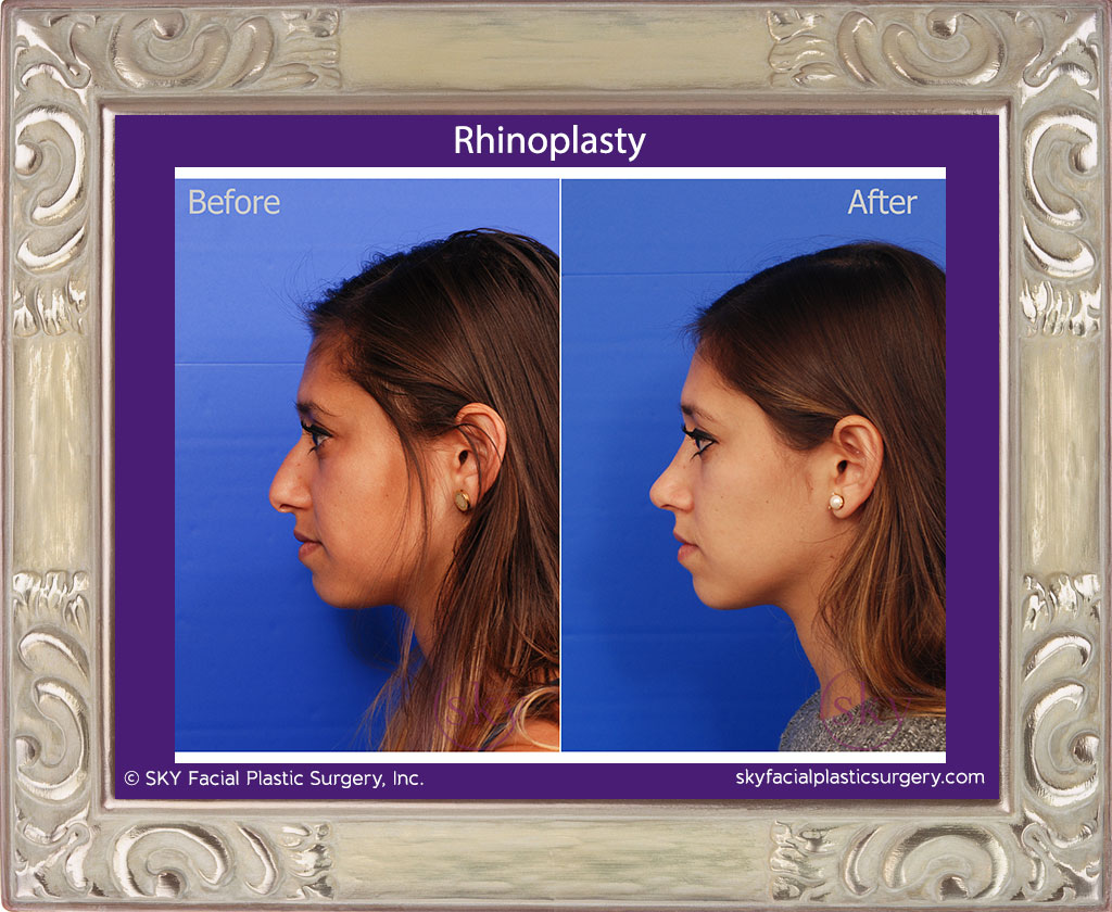 SKY-Facial-Plastic-Surgery-Rhinoplasty-22B.jpg