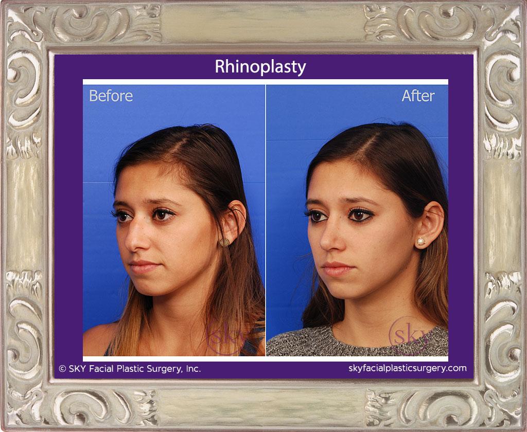 SKY-Facial-Plastic-Surgery-Rhinoplasty-22C.jpg