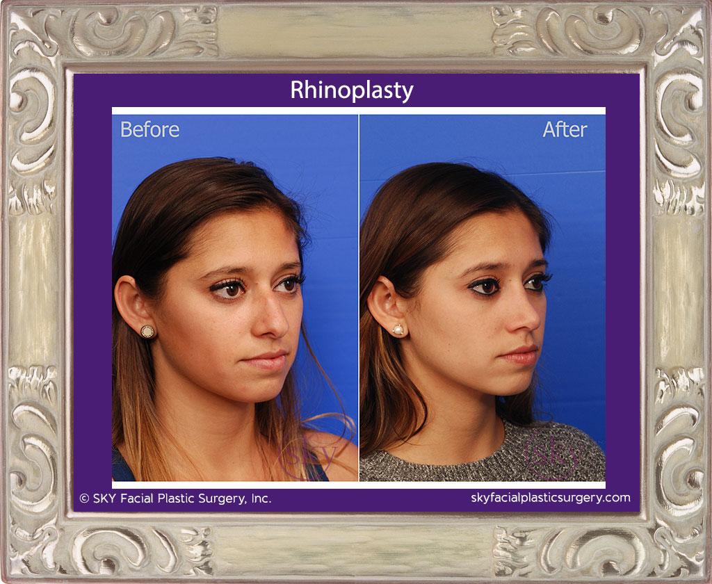 SKY-Facial-Plastic-Surgery-Rhinoplasty-22D.jpg