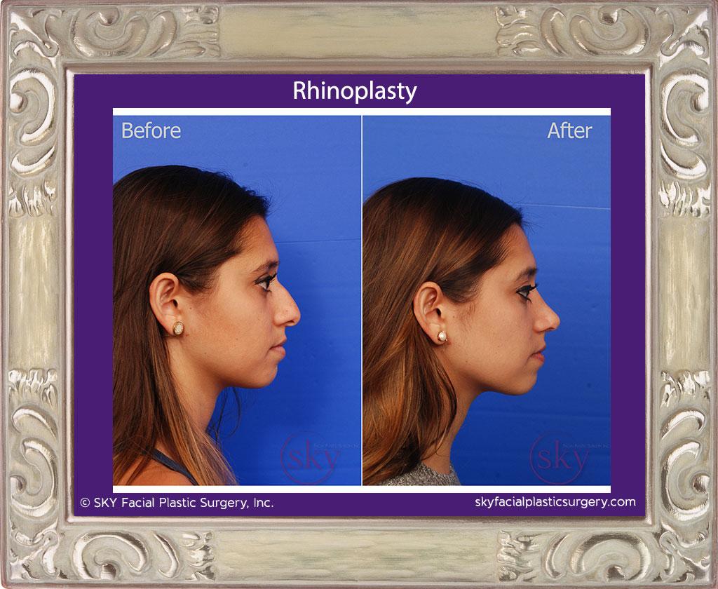 SKY-Facial-Plastic-Surgery-Rhinoplasty-22E.jpg