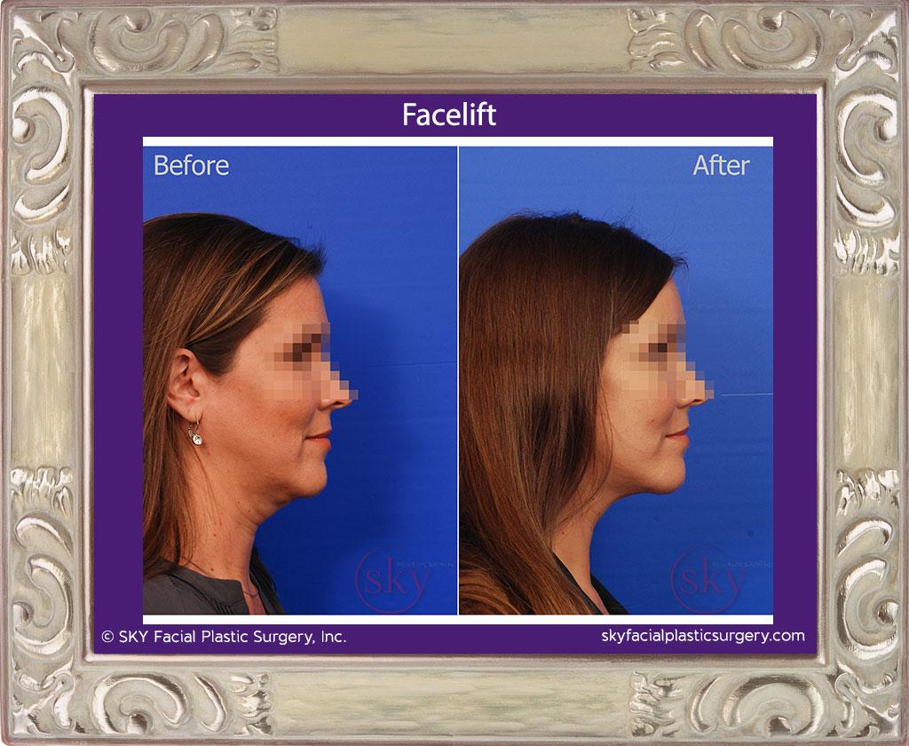 SKY-Facial-Plastic-Surgery-Facelift-8E.jpg