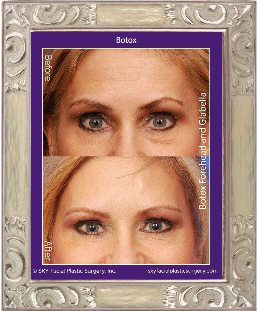 Botox-to-Forehead-Closeup.jpg