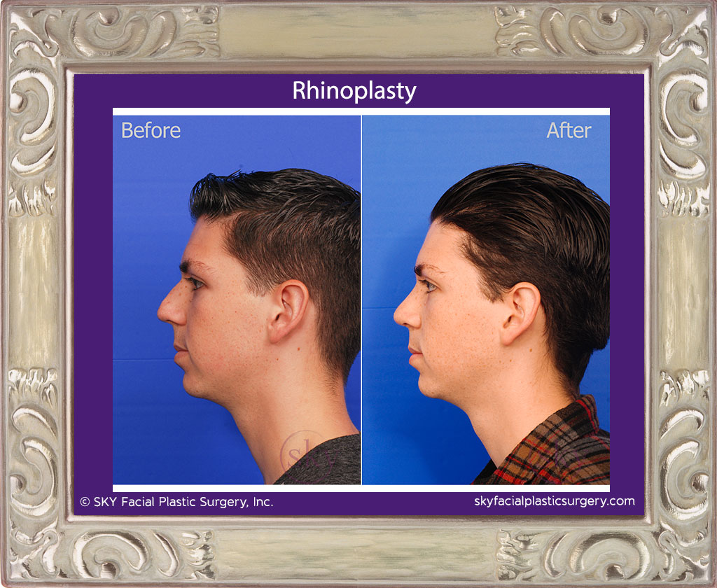 SKY-Facial-Plastic-Surgery-Rhinoplasty-23B.jpg