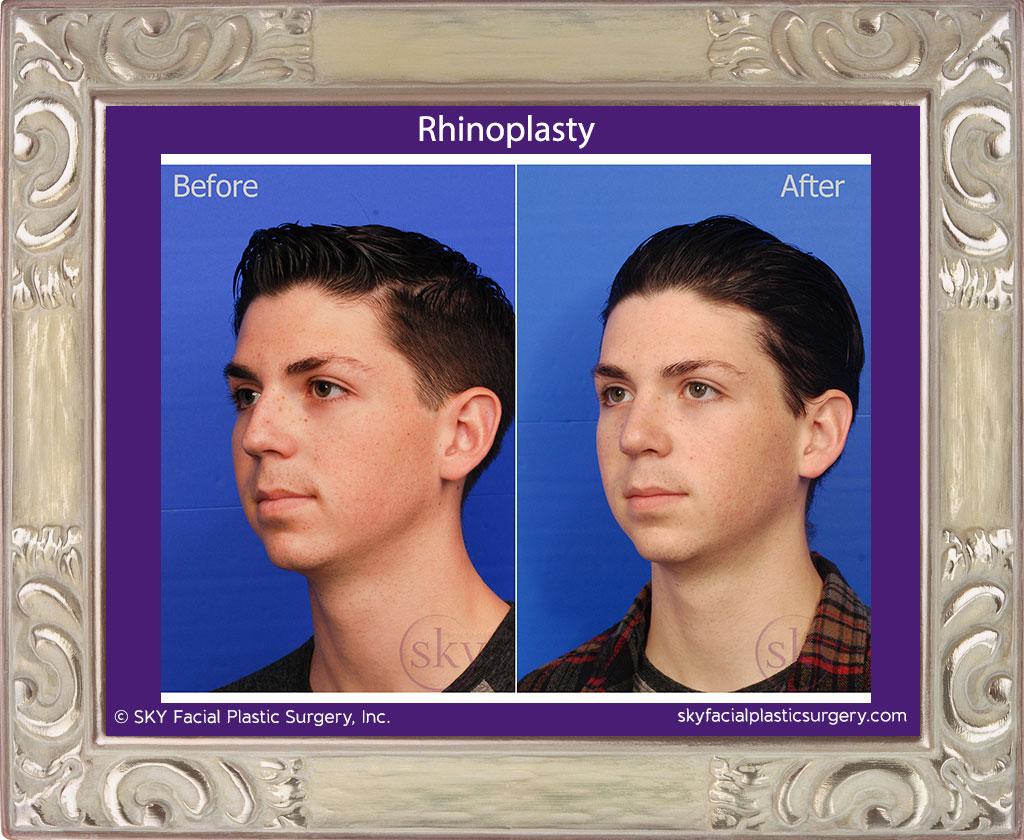 SKY-Facial-Plastic-Surgery-Rhinoplasty-23C.jpg