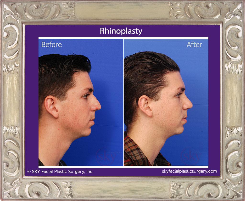 SKY-Facial-Plastic-Surgery-Rhinoplasty-23D.jpg