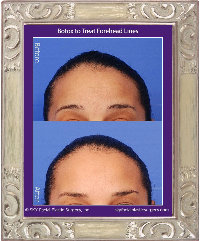 Botox-to-Forehead-3.jpg