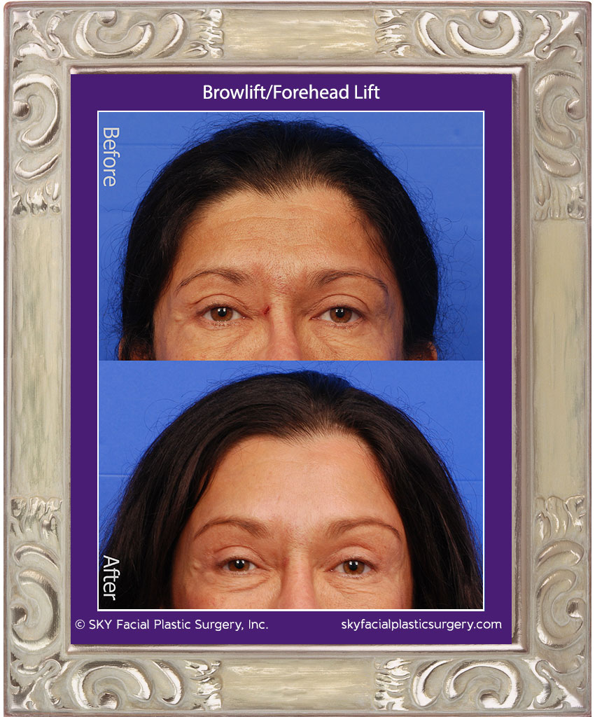 Browlift-2A.jpg