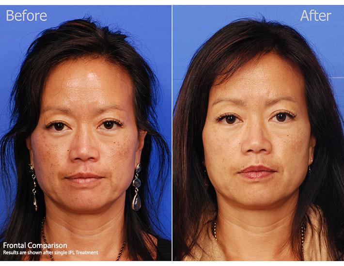 IPL Treatments - San Diego — SKY Facial Plastic Surgery