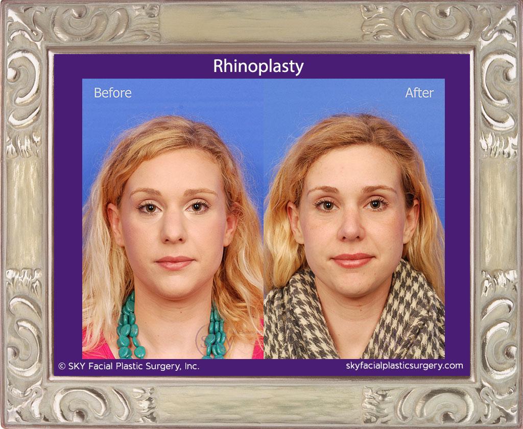 SKY-Facial-Plastic-Surgery-Rhinoplasty-25A.jpg