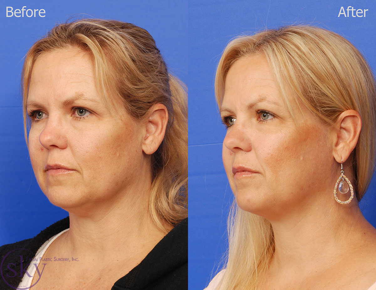 Kybella - non-surgical double chin removal