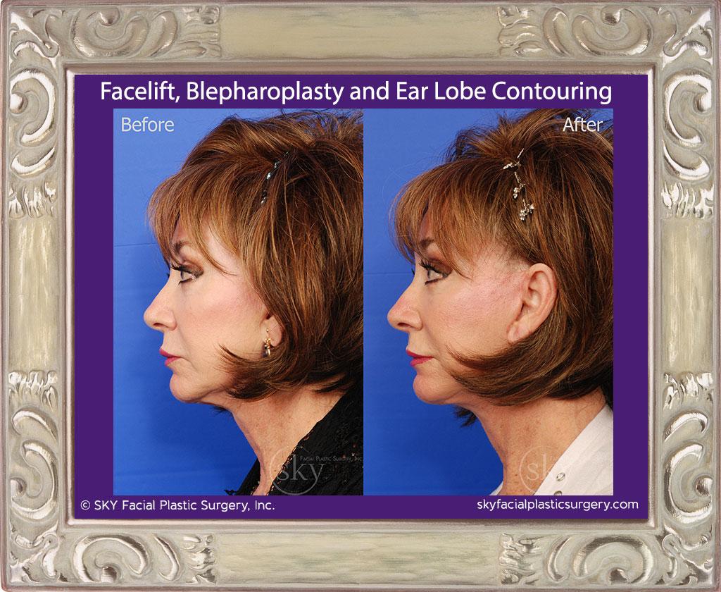Facelift, blepharoplasty and ear lobe contouring