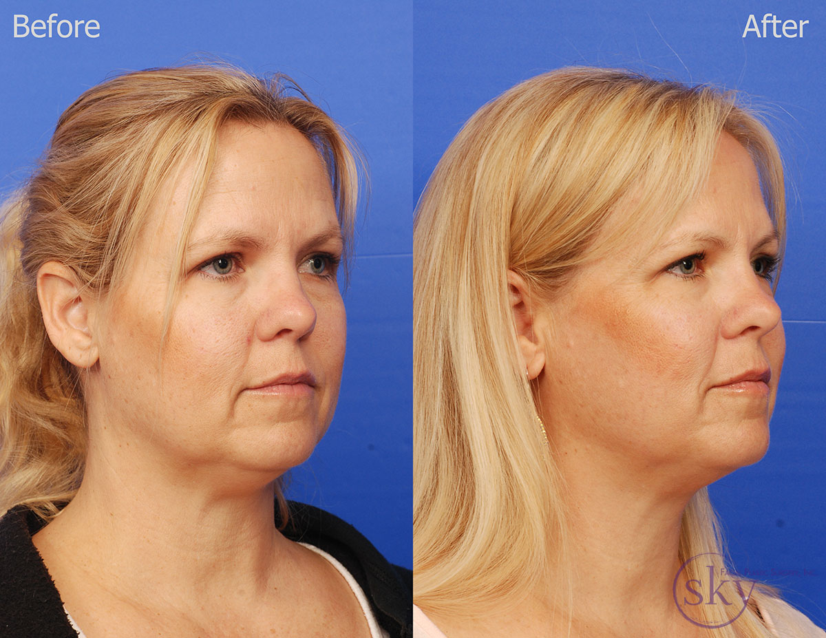 Double chin non-surgical treatment with Kybella