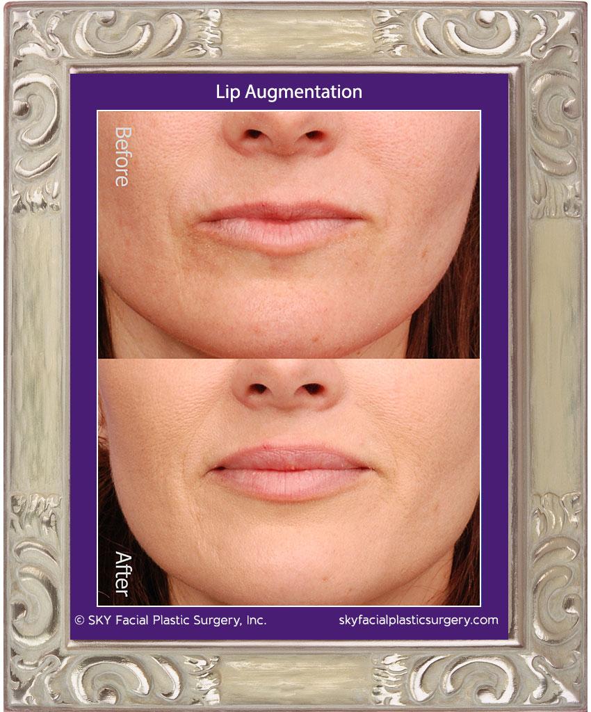 Juvederm lip augmentation