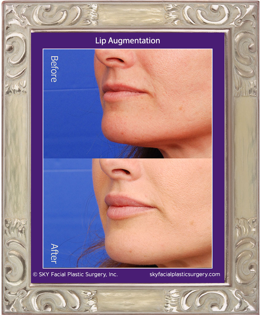 Non surgical lip augmentation