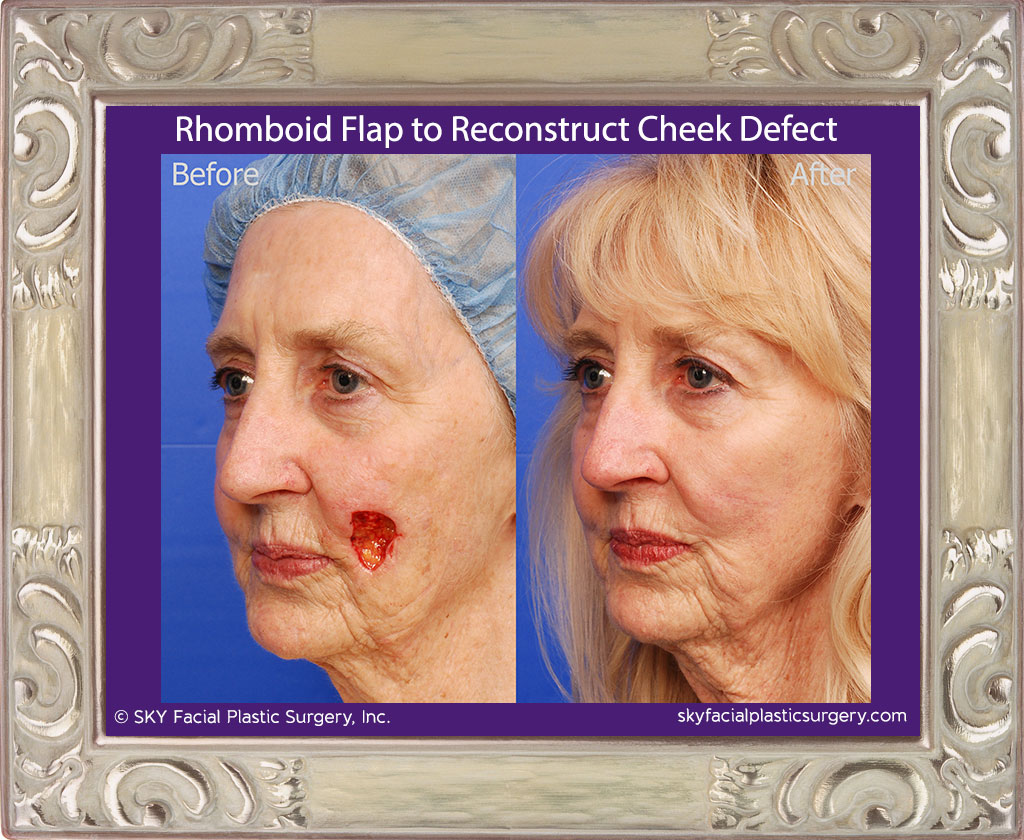 "This woman had basal cell carcinoma in two spots along the left cheek.  She had a dermatologic surgeon remove the cancer.  The resulting defect is shown as the ""before"" picture.  Dr. Yoo performed a rhomboid flap reconstruction of the defect.  Results are shown one year after surgery."