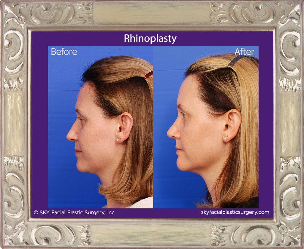 SKY-Facial-Plastic-Surgery-Rhinoplasty-30B.jpg