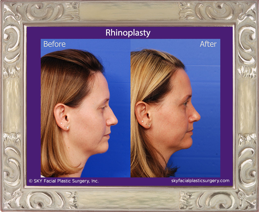 SKY-Facial-Plastic-Surgery-Rhinoplasty-30E.jpg