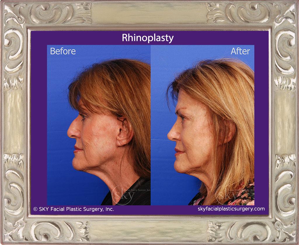 Copy of Rhinoplasty - Cosmetic