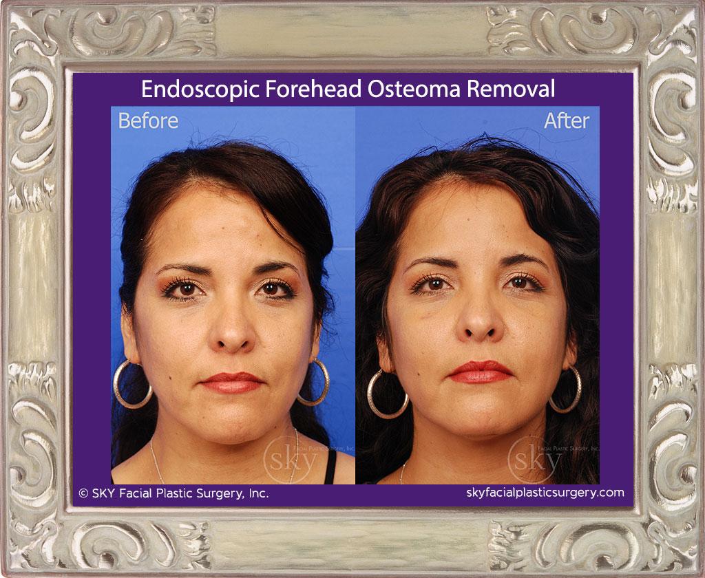 Endoscopic Forehead Osteoma Removal