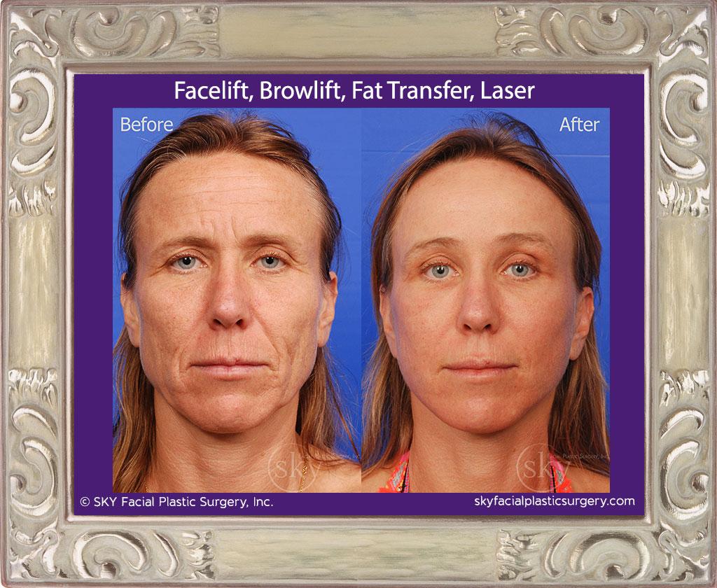 Facelift, Browlift, Fat Transfer, Laser