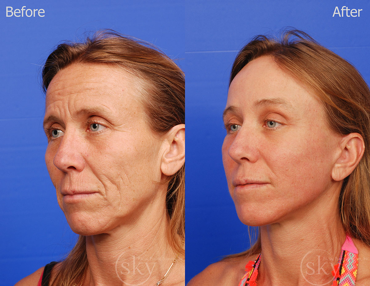 **Pearl fractional, Facelift, Browlift and Fat Transfer