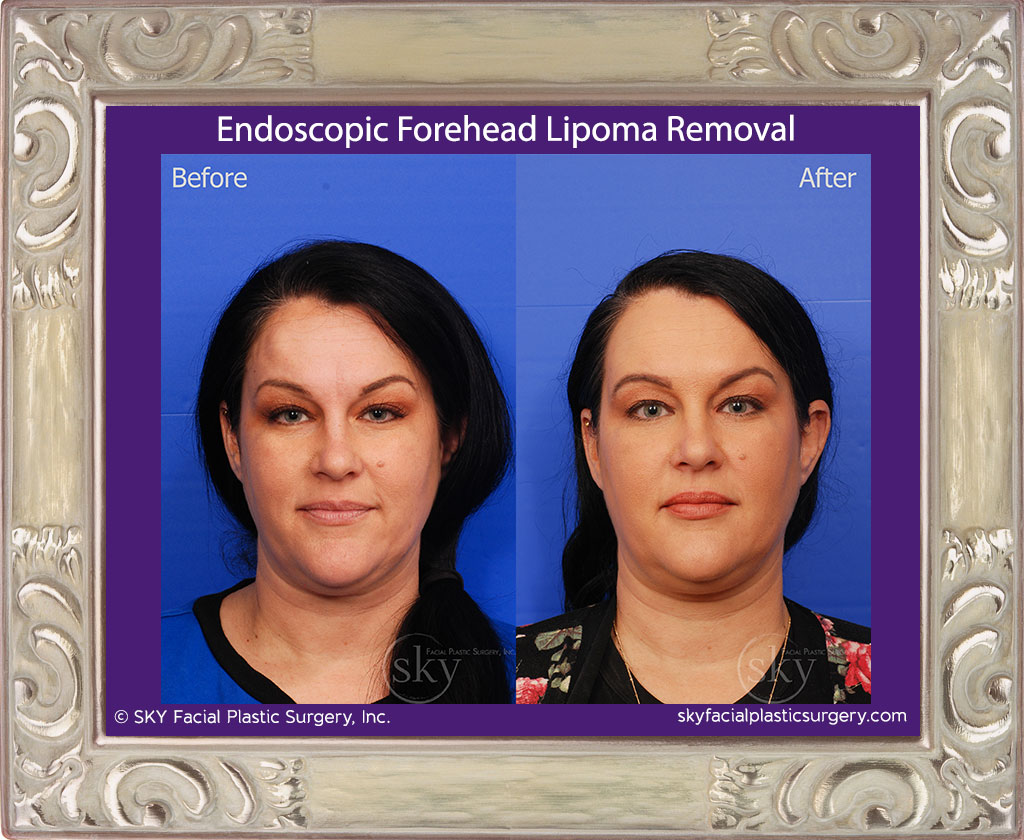 Endoscopic Forehead Lipoma Removal