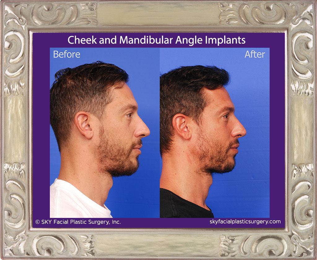 Malar and Mandibular Angle Implants