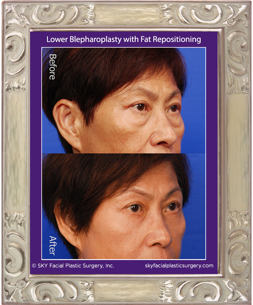 SKY-Facial-Plastic-Surgery-Lower-Lid-Blepharoplasty-13C.jpg