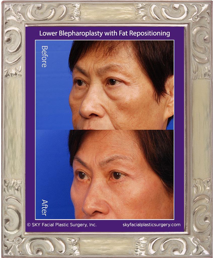 SKY-Facial-Plastic-Surgery-Lower-Lid-Blepharoplasty-13B.jpg
