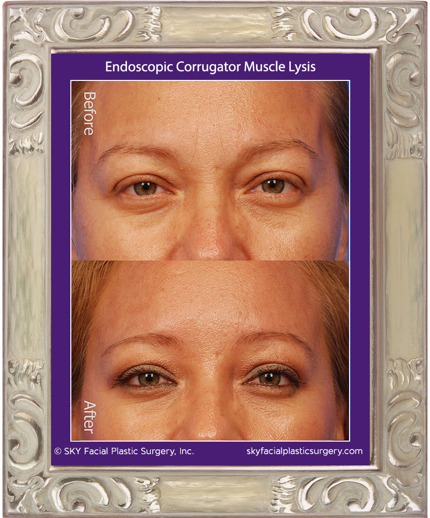 Corrugator Muscle Lysis | Frown Lines Removal — SKY Facial