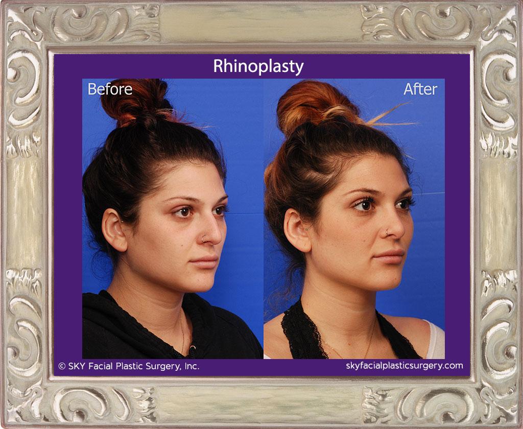 SKY-Facial-Plastic-Surgery-Rhinoplasty-33D.jpg