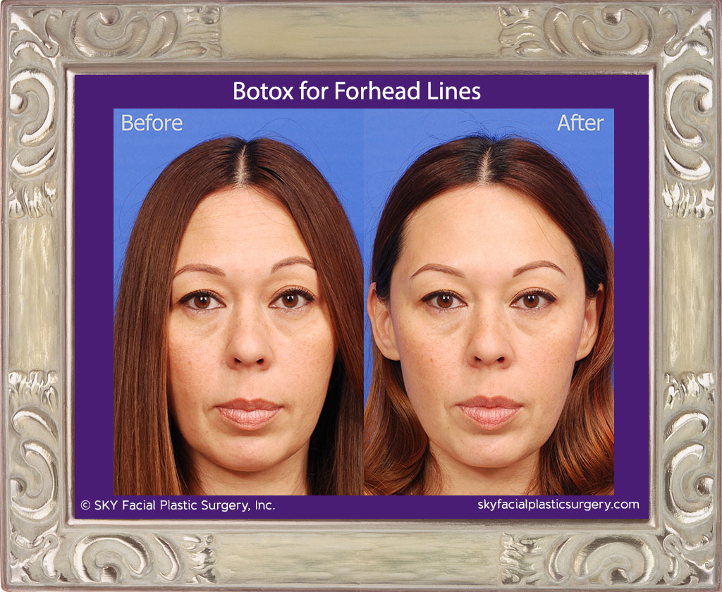 Botox-to-Forehead-4.jpg