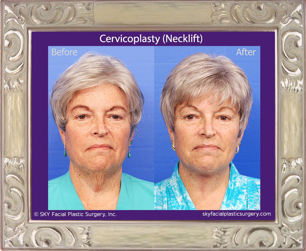Cervicoplasty-2A.jpg