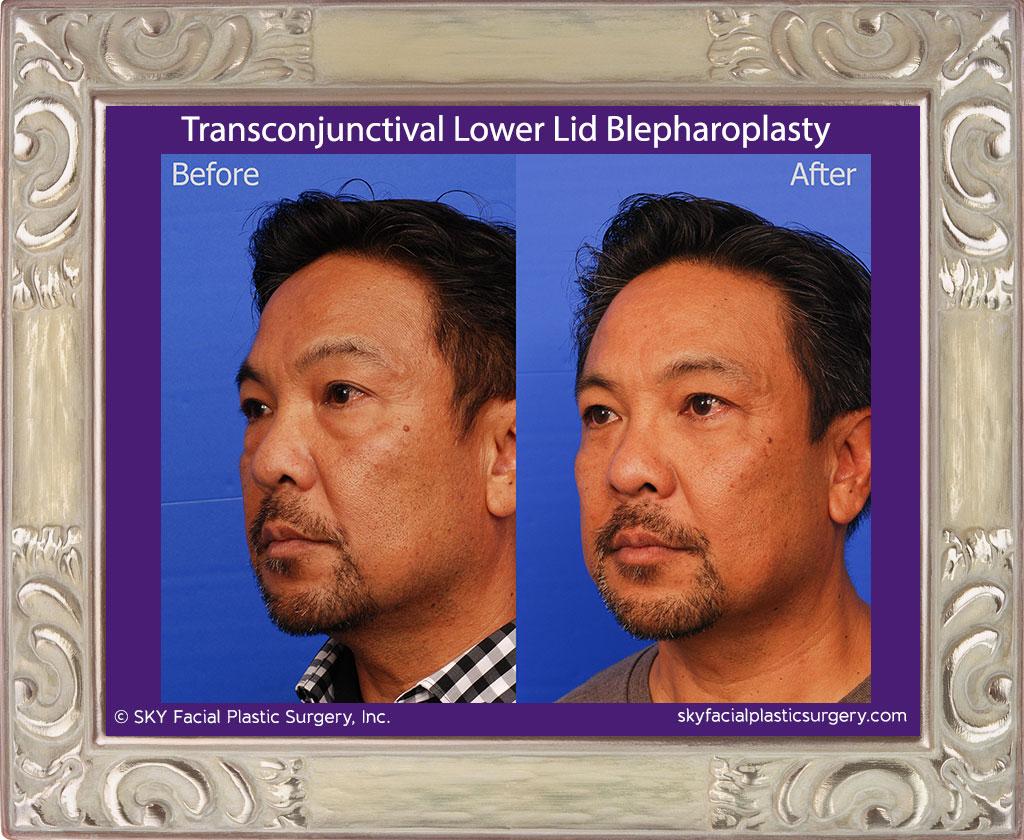 Scarless lower eyelid surgery