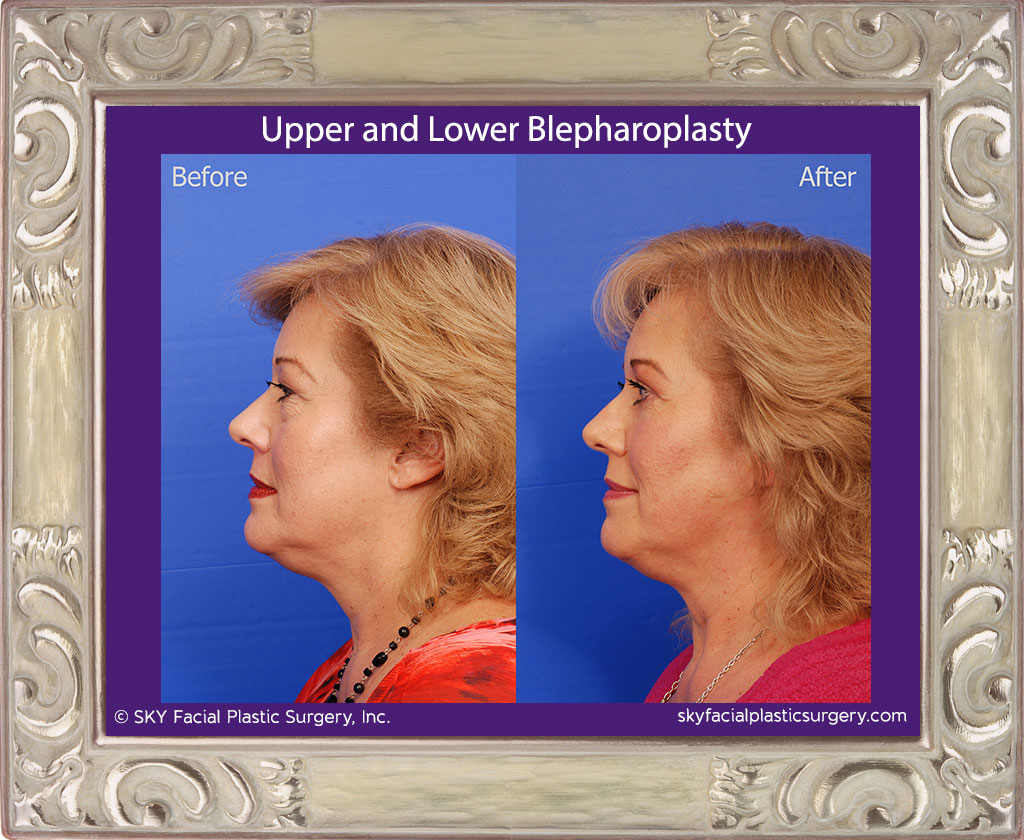 Upper and Lower Blepharoplasty with Fat Repositioning
