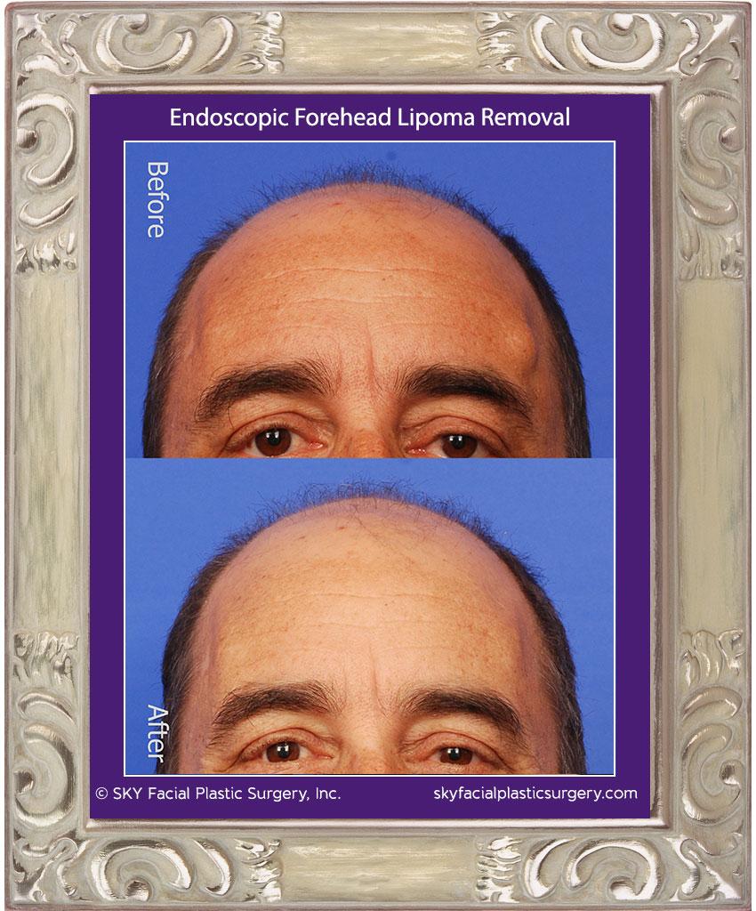 Endoscopic Forehead Procedures San Diego | Lipoma, Osteoma, Brow