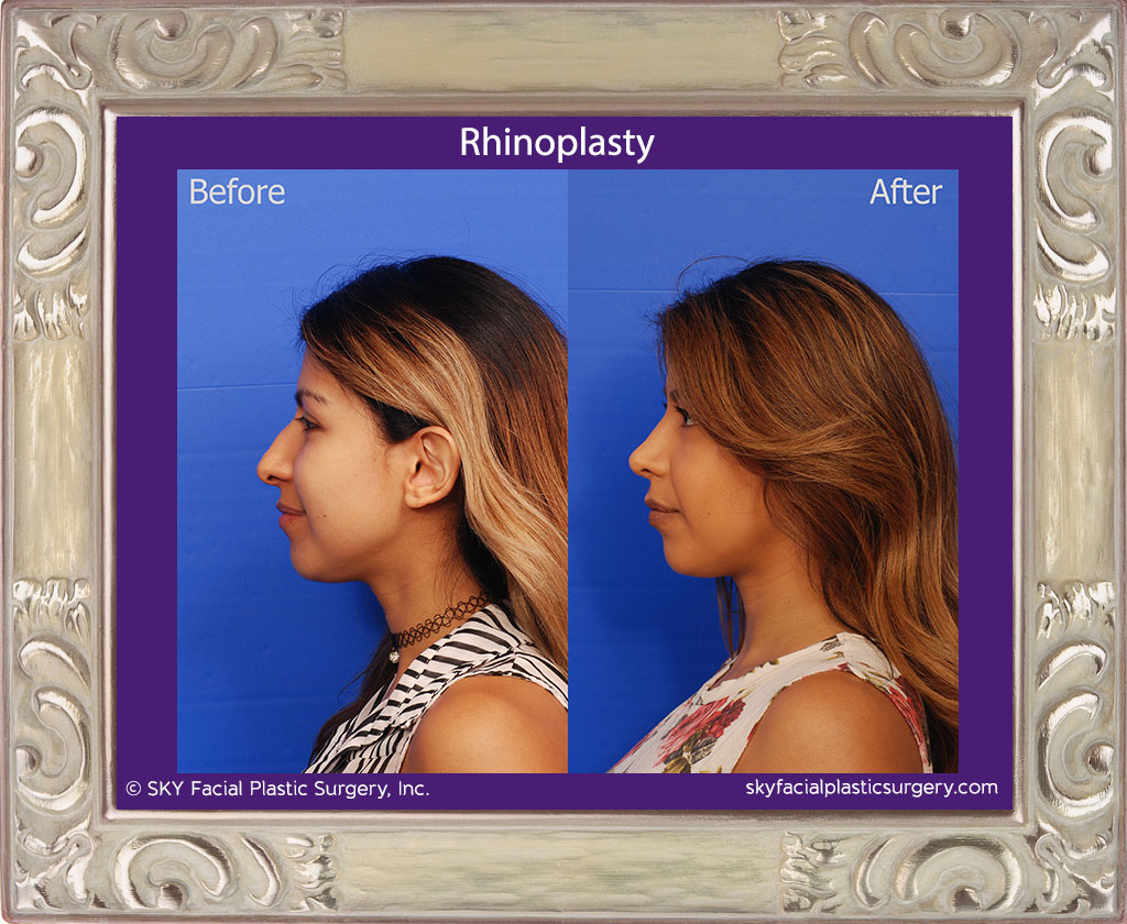 SKY-Facial-Plastic-Surgery-Rhinoplasty-36B.jpg