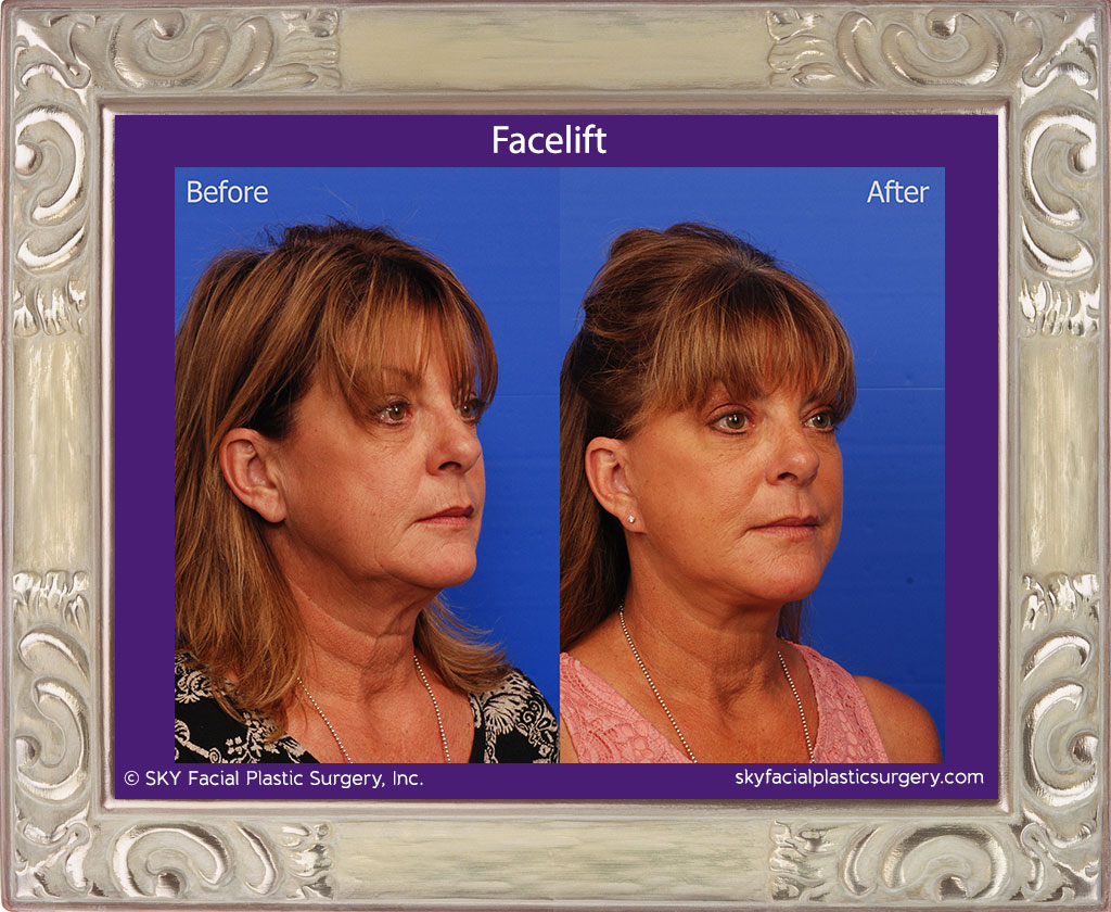 SKY-Facial-Plastic-Surgery-Facelift-15D.jpg