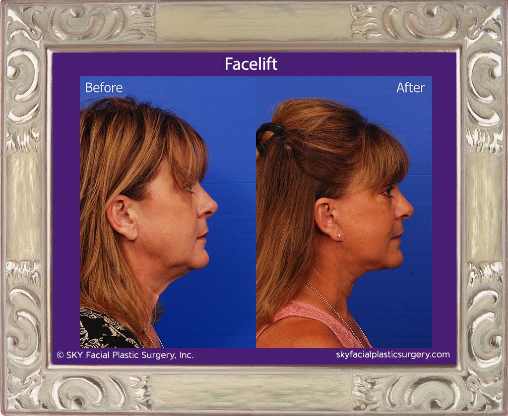 SKY-Facial-Plastic-Surgery-Facelift-15E.jpg