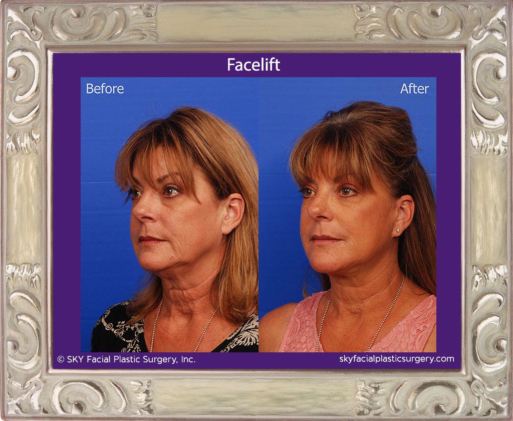 SKY-Facial-Plastic-Surgery-Facelift-15C.jpg