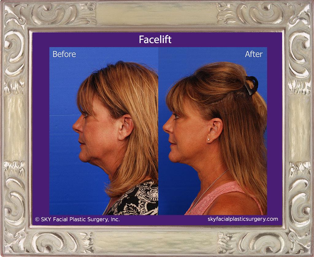 SKY-Facial-Plastic-Surgery-Facelift-15B.jpg