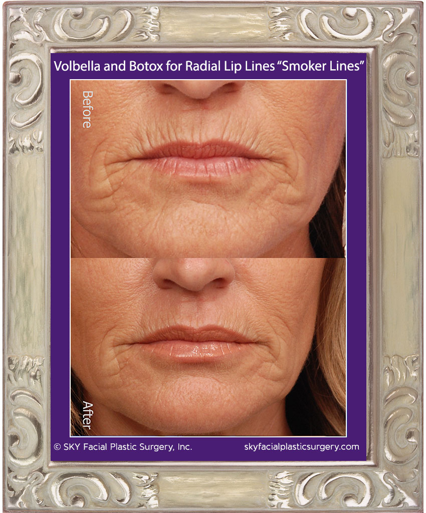 Volbella and Botox for smoker lines