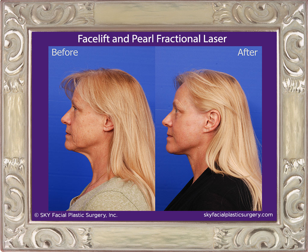 Facelift with Pearl Fractional Laser