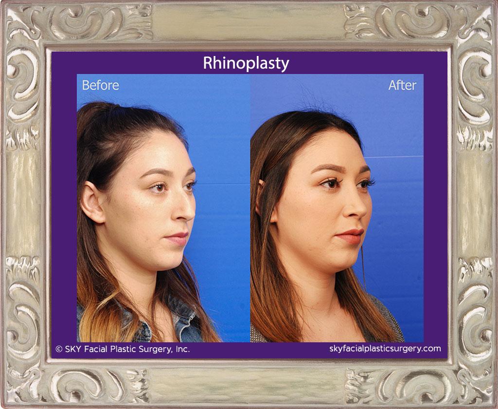 SKY-Facial-Plastic-Surgery-Rhinoplasty-37D.jpg