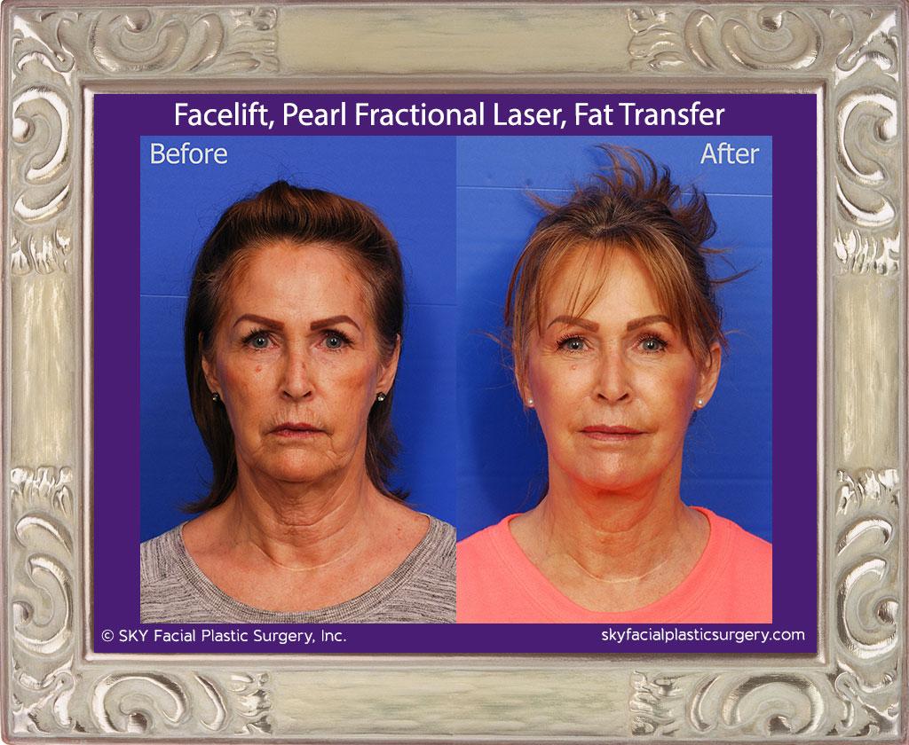 Facelift, Fat Transfer, Pearl Fractional Laser - San Diego
