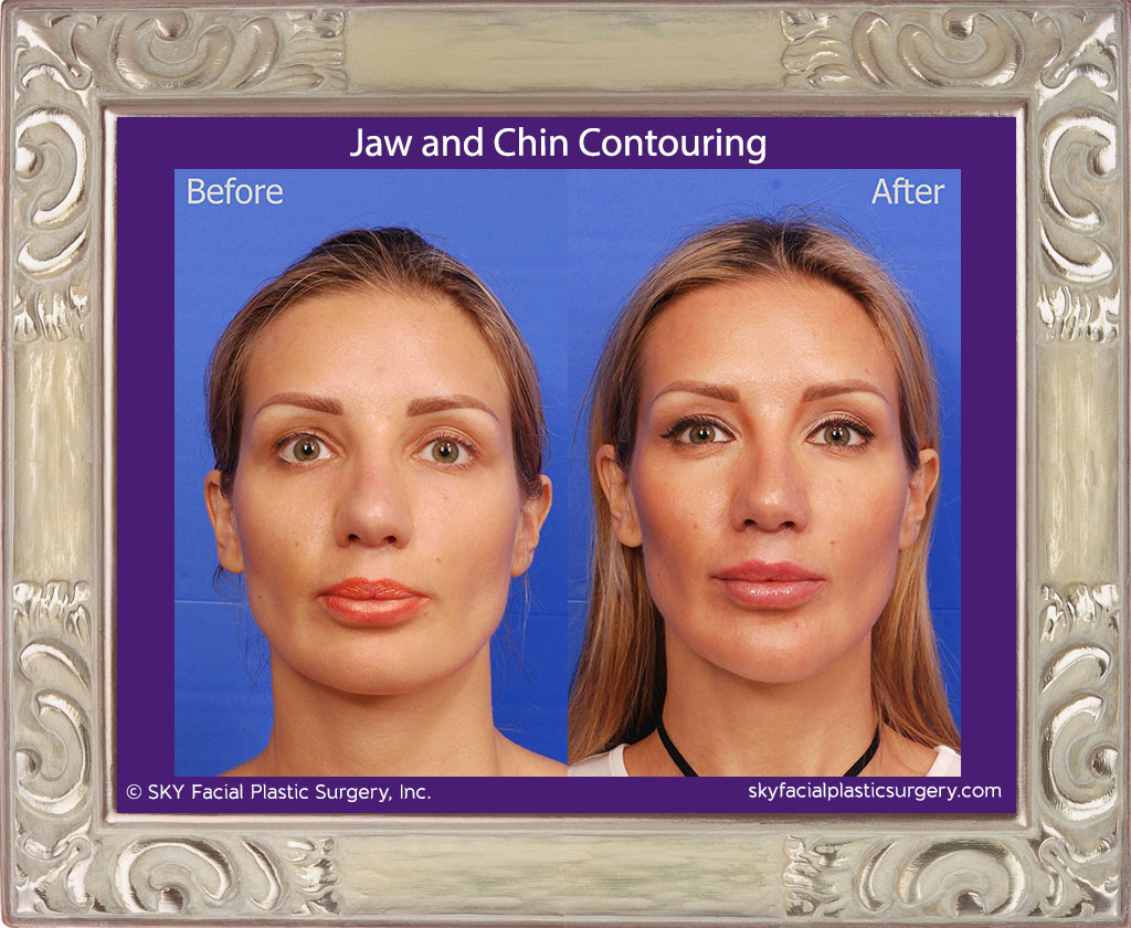 Narrowing of the chin and mandible to enhance the feminine appearance.