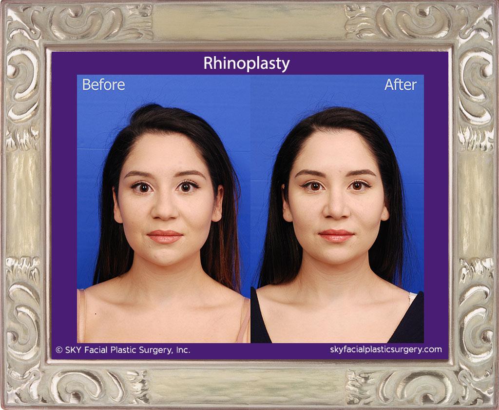Copy of Cosmetic Rhinoplasty - San Diego