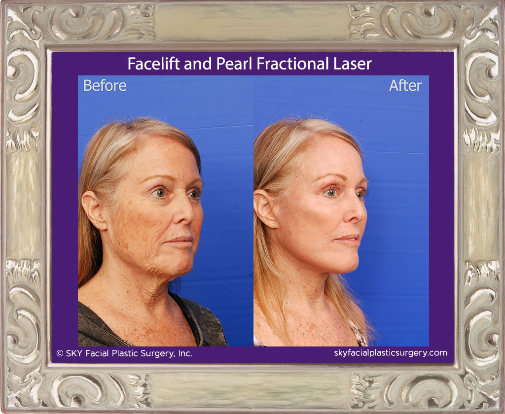 Facelift and Pearl Fractional Laser - San Diego